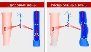 Ретикулярный варикоз