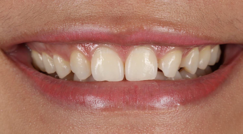 Как выполняется установка виниров на зубы?