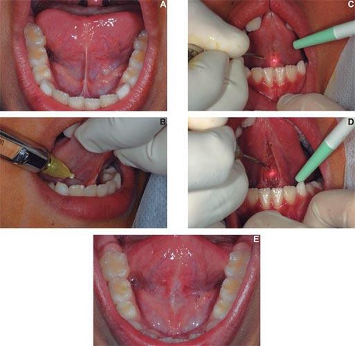 Для чего делается подрезание уздечки под языком у детей?