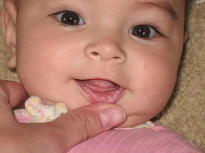 Детский кандидозный стоматит: его симптомы и признаки
