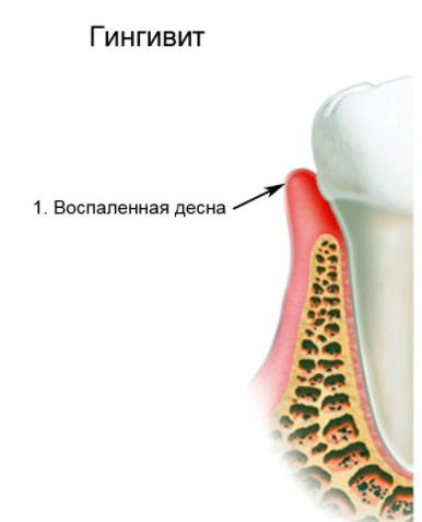Может ли от зуба болеть горло
