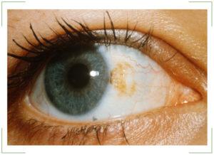 Жёлтые пятна на белке глаза