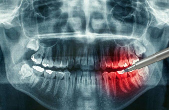После удара потемнел молочный зуб у ребенка