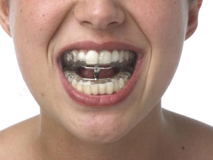 Сколько заживает сломанная челюсть