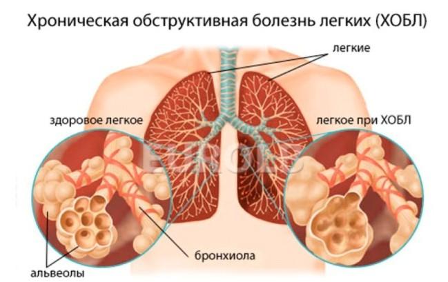 Обструкция лёгких