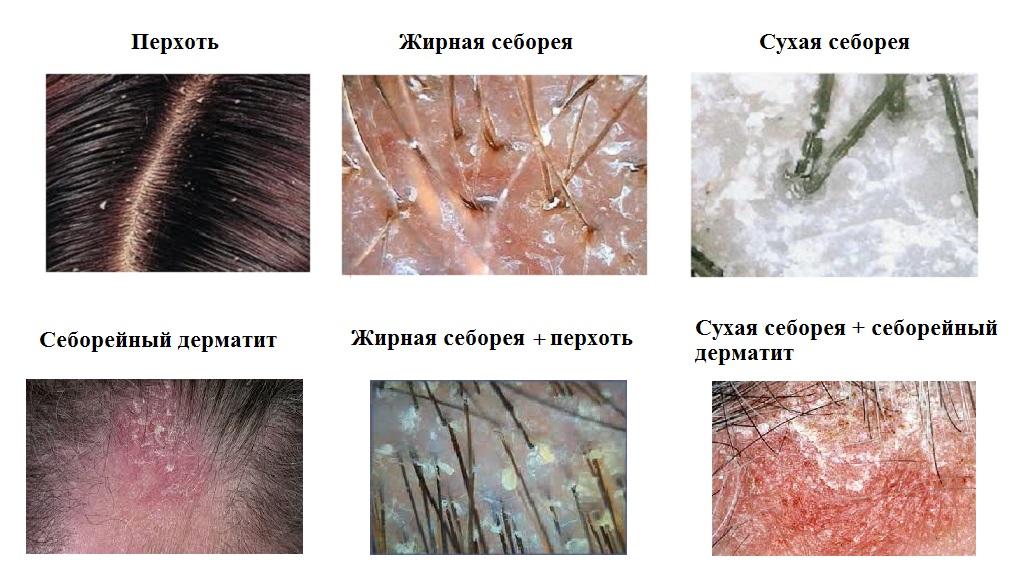 Лечение перхоти: быстрое и эффективное восстановление кожи головы