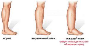 лечение внутреннего варикоза