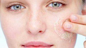 Польза или вред от пилингов для кожи? Причины не делать их часто