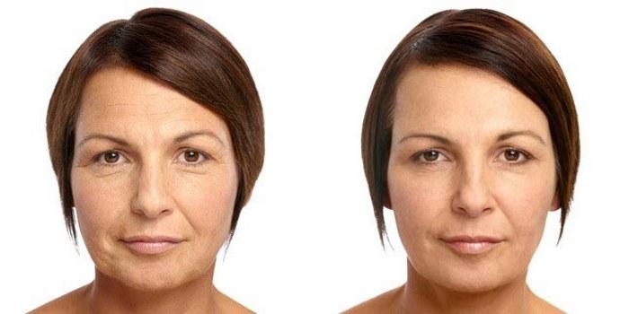 Фруктовый пилинг как сделать самостоятельно , без косметолога