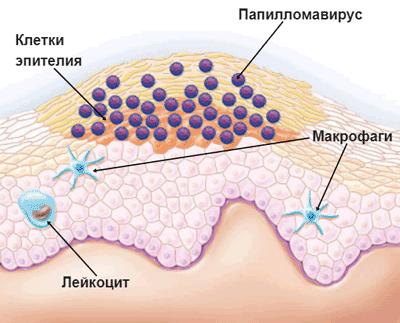 5 мифов о вирусе папилломы человека