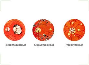 Хориоретинит