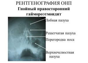 Гнойный правосторонний гаймороэтмоидит на снимке