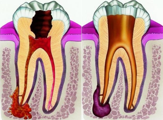 Что такое мышьяковистый периодонтит