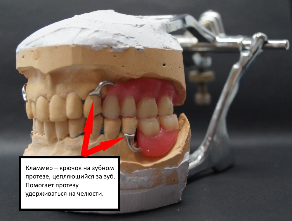 Бюгельный протез на нижнюю челюсть