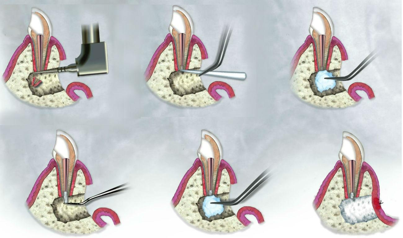 Резекция верхушки корня зуба