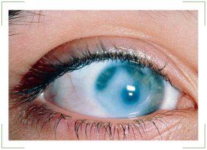 Периферическая дистрофия сетчатки глаза