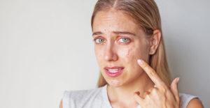 5 лучших масок при проблемной коже лица