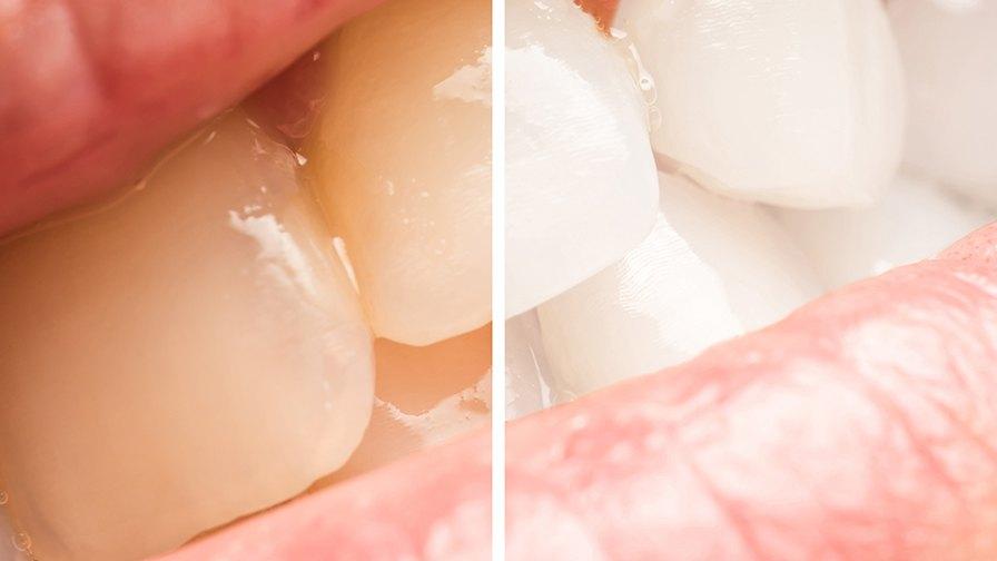 Как натурально отбелить зубы?