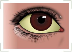 Желтые белки глаз
