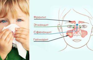 Виды синуситов у детей
