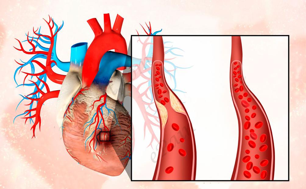 stenoz-legochnoy-arterii