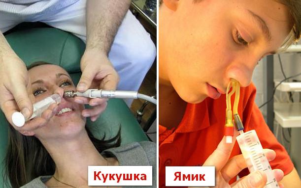 Промывание носа в больнице