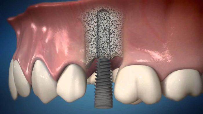 Мини импланты для зубов на верхнюю челюсть
