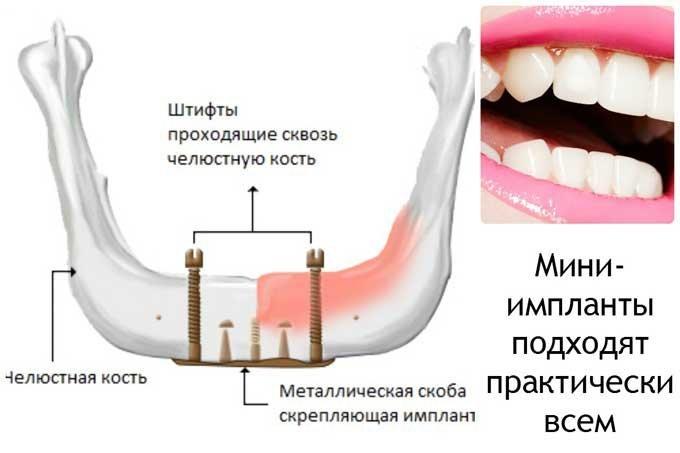 мини-импланты