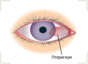 Пятно на белке глаза
