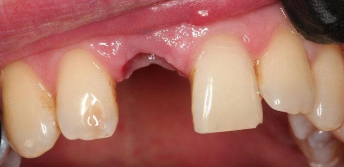 Флюс после удаления зуба: что делать