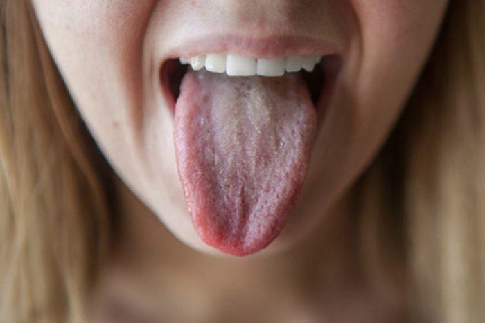 Что делать, если опух язык?