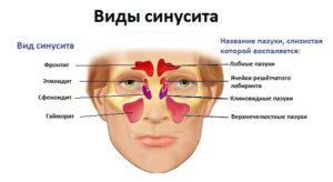Виды синуситов у детей и у взрослых