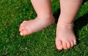варикоз у детей болезнь