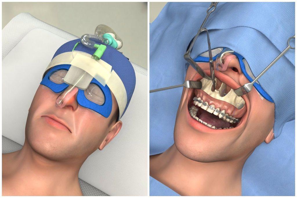 В каких случаях проводят операцию по исправлению прикуса?