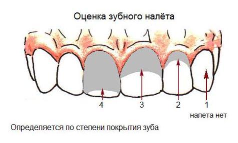 Индексы гигиены полости рта