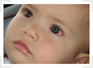 Лопнул сосуд в глазу у ребенка