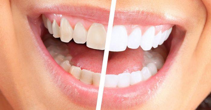 Гель для зубов для отбеливания