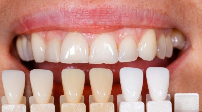 Виниры на зубы: как выбрать и какие лучшие?