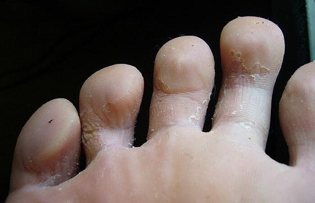 авитаминоз на коже пальцев ног