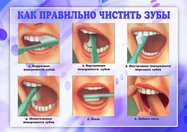 как правильно чистит зубы