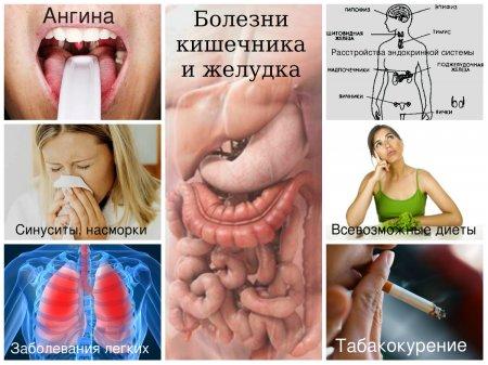 Неприятный запах из горла-почему появляется галитоз
